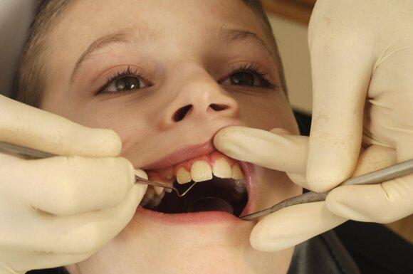 Daugėja vaikų, kurių dantų būklė nėra gera