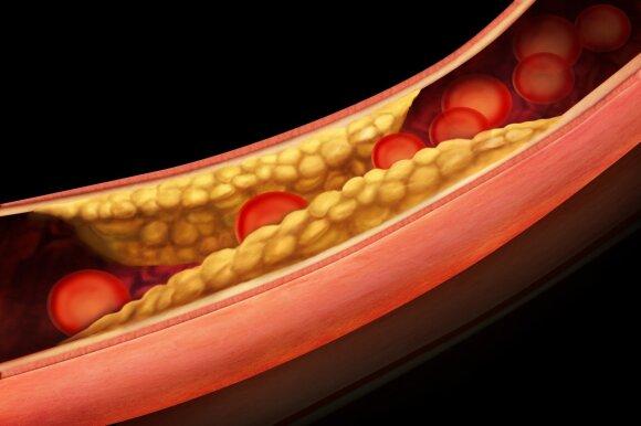Aterosklerozę turime visi ir prasideda ji nuo vaikystės: ką daryti, kad liga nepasireikštų