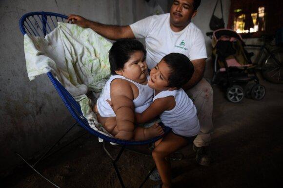 10 mėnesių kūdikis sveria 28 kilogramus: gydytojai baiminasi dėl jo gyvybės