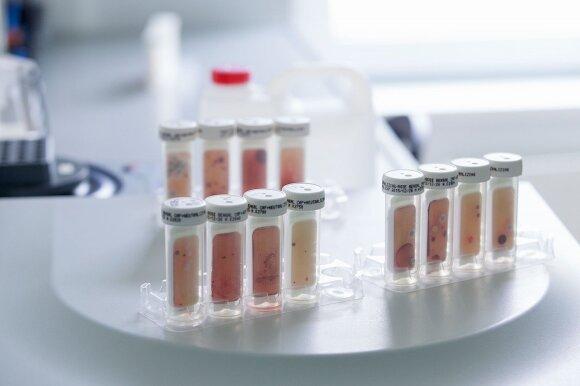 Burnoje esantys mikroorganizmai – galimi ligų sukėlėjai