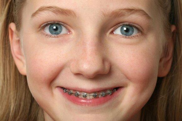 Ortodontas: tinkamiausias amžius pirmam vizitui yra 6-8 metai