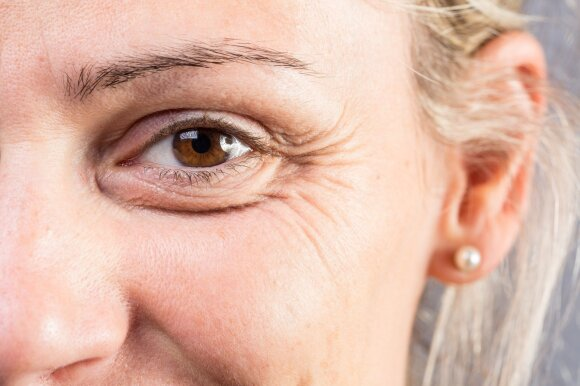 Pirmieji odos senėjimo požymiai pasireiškia anksčiau, negu galvojote: profesorė patarė, kaip tai stabdyti