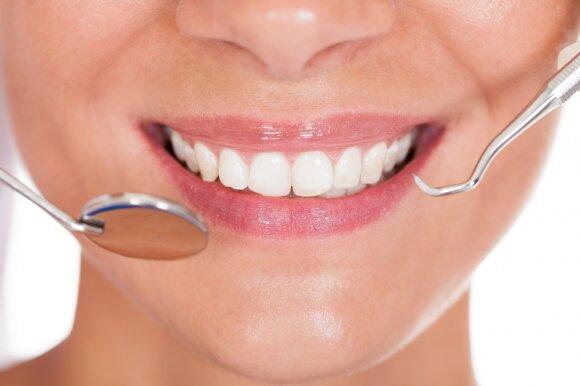 Ar namų sąlygomis galima balintis dantis: burnos higienistė patvirtino ir paneigė 7 faktus