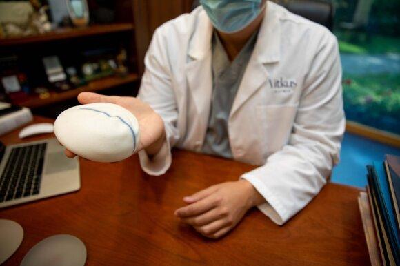 Krūtų implantai