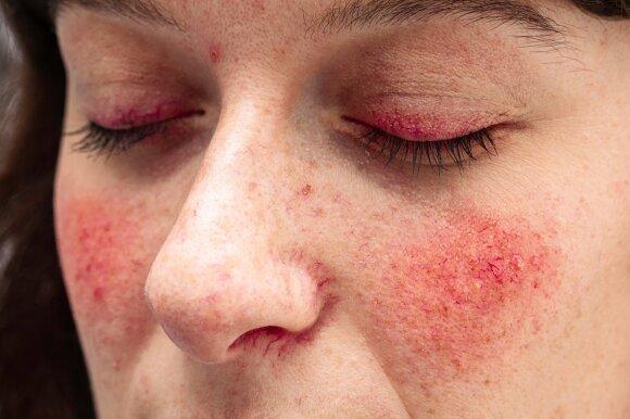 Gydytoja dermatovenerologė: nėra vieno būdo rožinei nugalėti – pasiruoškite kompromisams