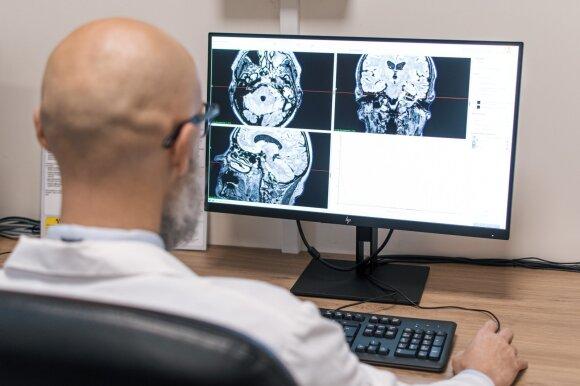 Gydytojas analizuoja galvos smegenų rentgeno nuotraukas.