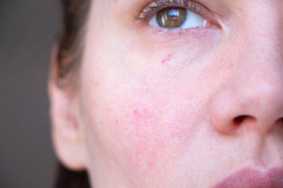 Dermatovenerologė įspėja: vos pajutę pirmus šios ligos simptomus – nustokite degintis saulėje