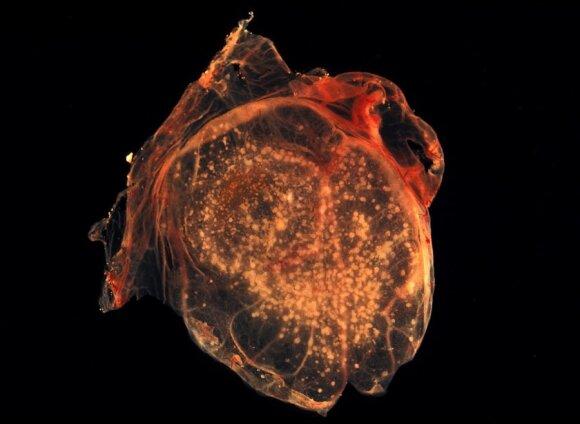 Raupų virusas (CC-SA/ CDC/Dr. David Kirsh nuotr.)