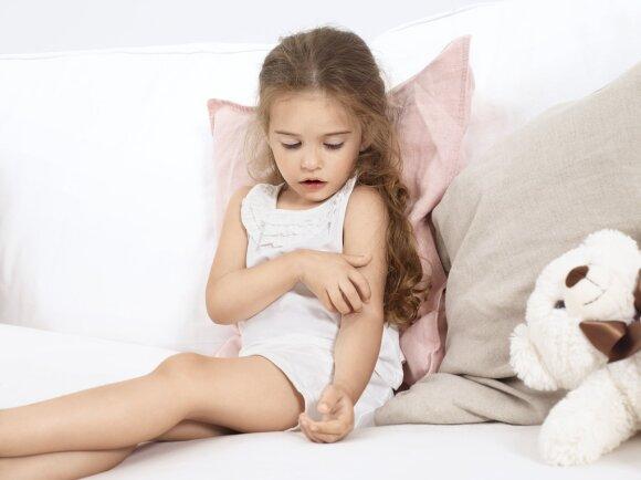 Septyni patarimai, padėsiantys palengvinti atopinio dermatito simptomus
