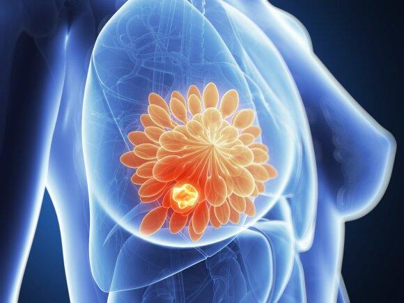 Krūties vėžys.