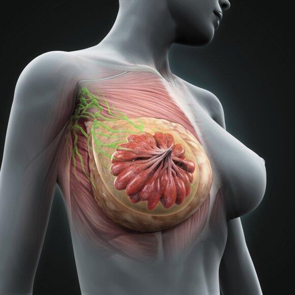 Ką apie krūties vėžį reikėtų žinoti kiekvienai moteriai?