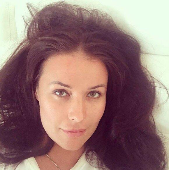 Федорова потрясла своим снимком без макияжа