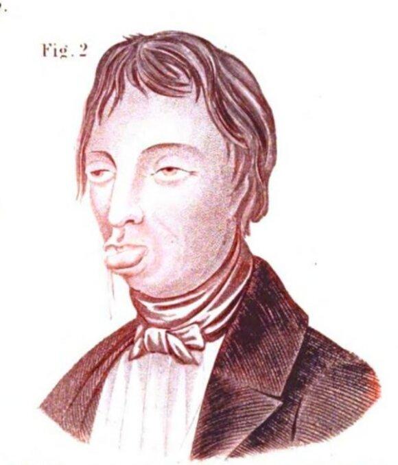 """Masturbatorius. Iliustracija iš 1847 m. knygos """"The Silent Friend"""""""