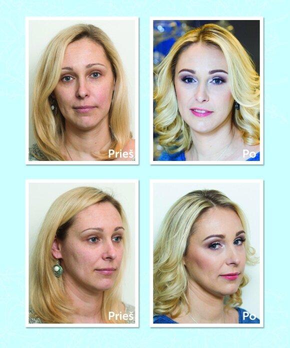 Tokio rezultato nesitikėjo: štai kaip atrodė prieš procedūrą ir po jos