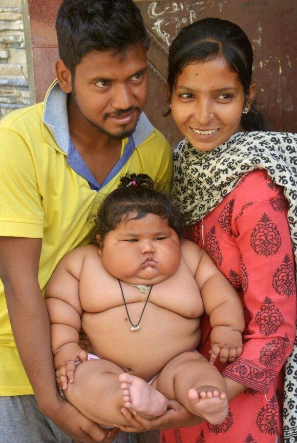 Gydytojai sunerimę – kūdikio svoris didėja rekordiniu greičiu