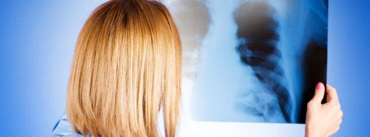 Plaučių ligų diagnostikai ir gydymui – ekstremalus šaltis