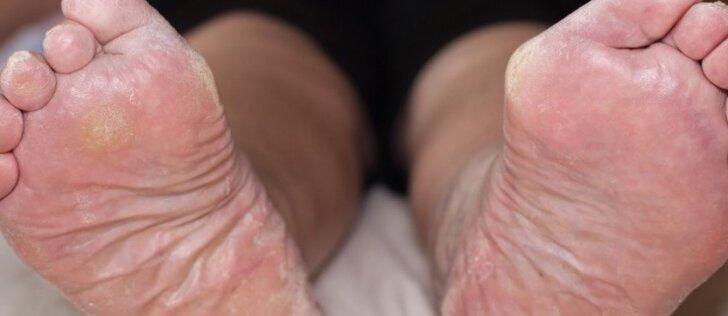Keturios nemalonaus kojų kvapo priežastys ir būdai jį panaikinti