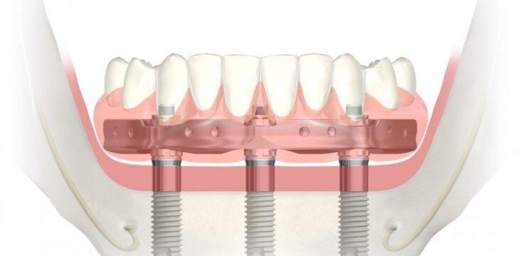 Naujas, patikimas ir greitas sprendimas atkurti dantis – jau Lietuvoje