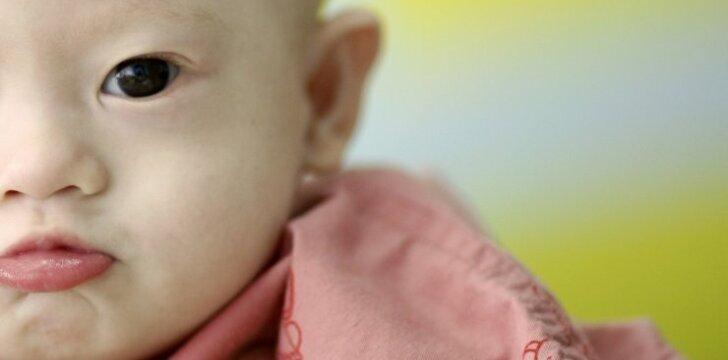 """Sužinoję apie Dauno sindromą, tėvai pasielgė nežmoniškai <sup style=""""color: #ff0000;"""">FOTO</sup>"""