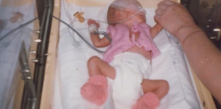 24 nėštumo savaitę gimusios Ugnės mama: bet kurią akimirką galėjome jos netekti