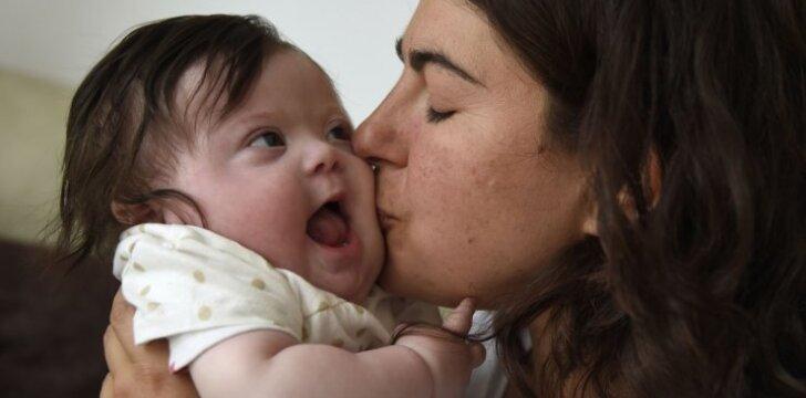 Vaiką su Dauno sindromu auginančios mamos atviras laiškas mums visiems