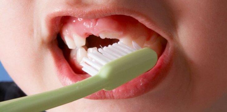 Tyrimas: lietuviai dantų šepetėlį keičia kartą per metus