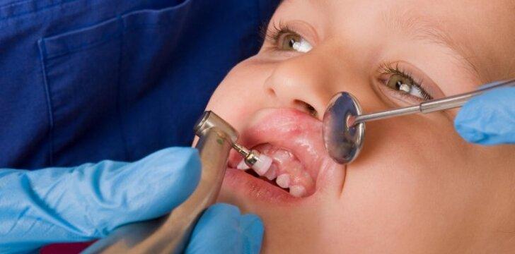 Ar galima 4 metų vaikui vienu metu gydyti dešimt dantų?