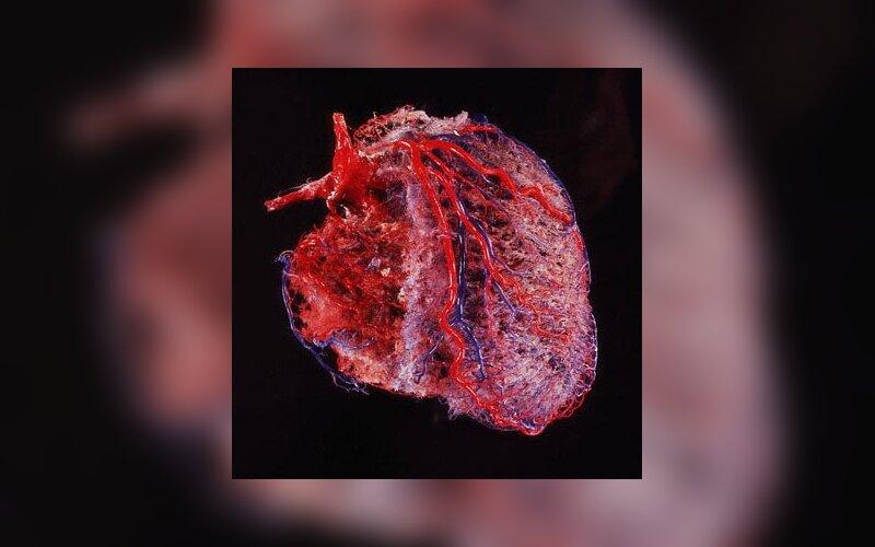 Koks pulsas yra normalus? - Paliesiaus fizinio krūvio klinika - individualios programos be vaistų!