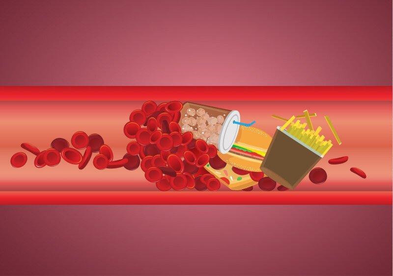 hipertenzijos ir didelio cholesterolio kiekio receptai)