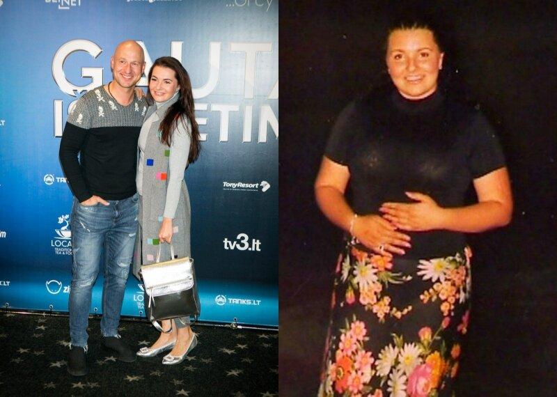 svorio pokyčiai regėjimo pokyčiai