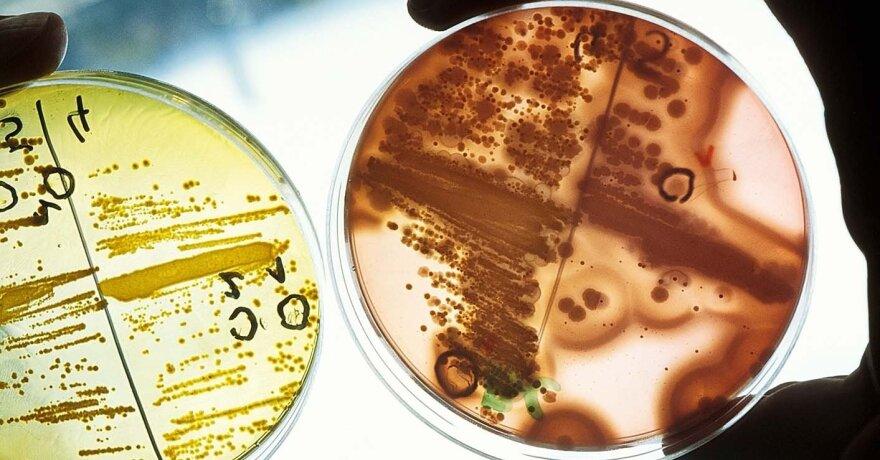 bakterijos