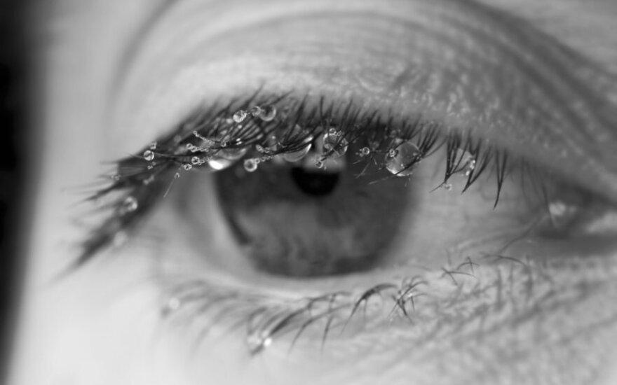 Šaltuoju metų laiku ašaroja akys: ką reikia žinoti