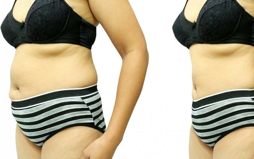 Kalėdos – tinkamas metas patarti artimiesiems numesti svorio? Kaip numesti svorio prieš Kalėdas