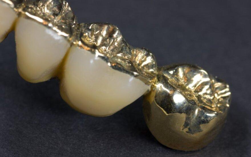 Auksiniai dantys