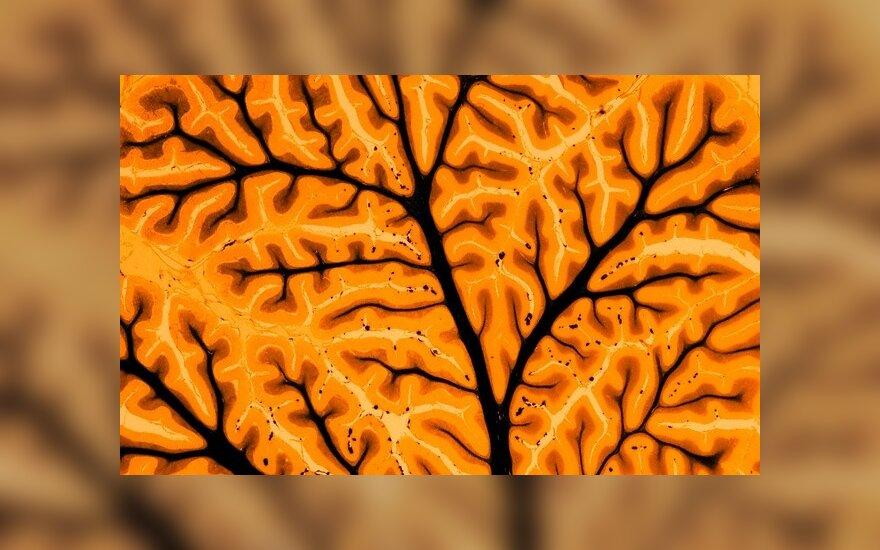 Gyvenimą pakeitę religiniai potyriai ir smegenų mažėjimas – susiję