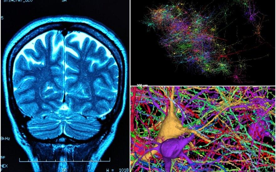 Smegenų vaizdalapis / Lichtman Laboratory/Shutterstock nuotr.