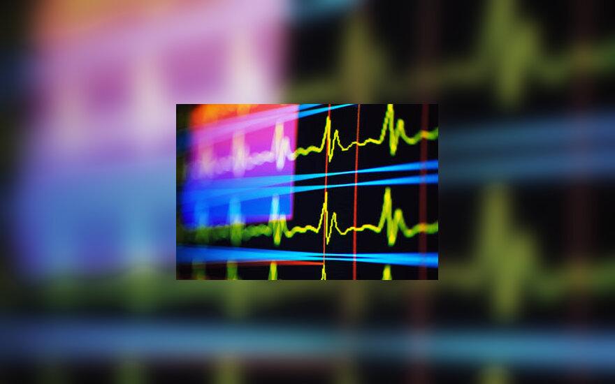 pulsas, širdis, ligoninė, medicina