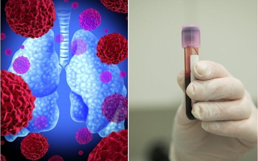 Kraujo tyrimas gali diagnozuoti 5 skirtingus vėžio tipus