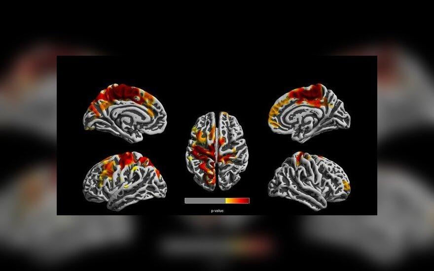 Oro tarša sukelia pakitimus vaikų smegenyse