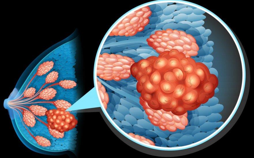 Mokslininkai rado užuominų, kodėl atsinaujina krūties vėžys