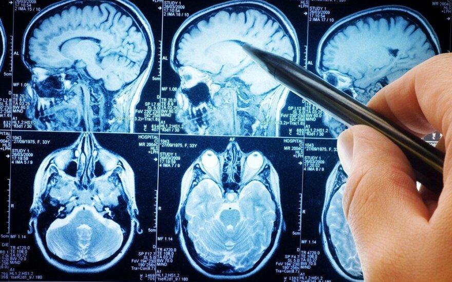 Smegenys yra itin pažeidžiamos dviem gyvenimo periodais