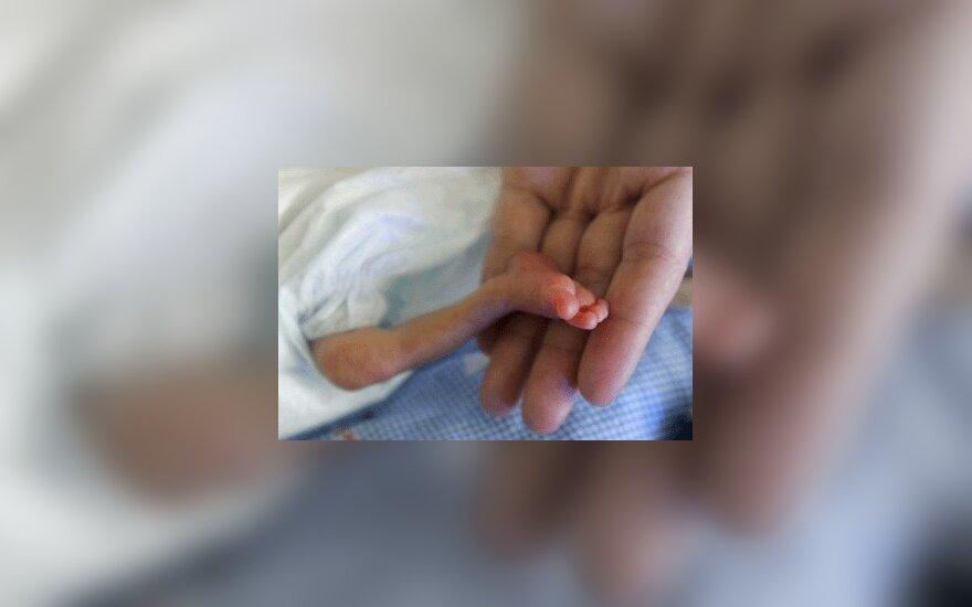 Moteris poliklinikoje pagimdė negyvą kūdikį