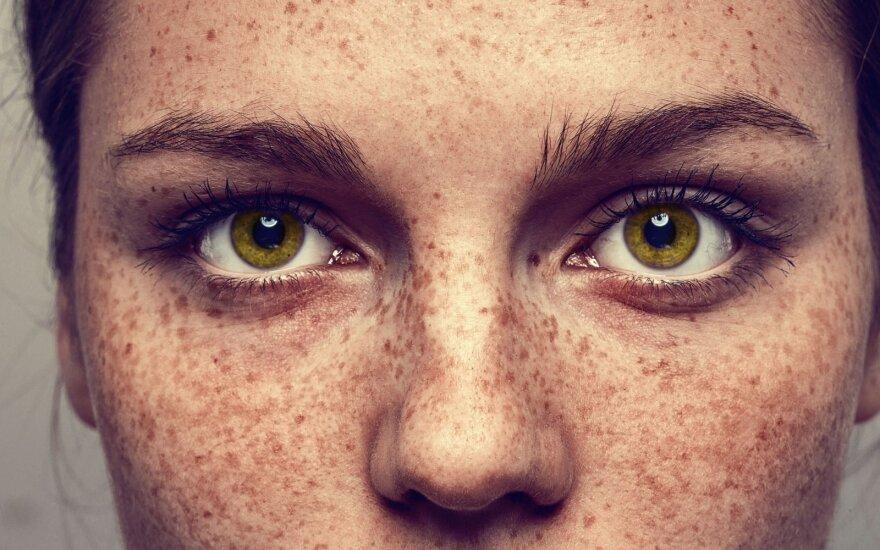 Strazdanų bei apgamų būna ir akyse: ignoruoti jų nereikėtų