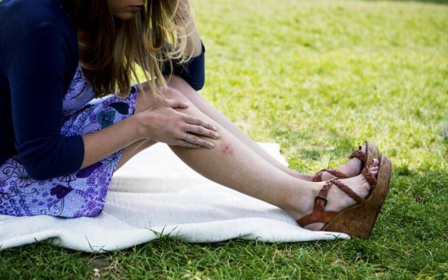 Alergijos vabzdžių įkandimams: ką svarbu žinoti