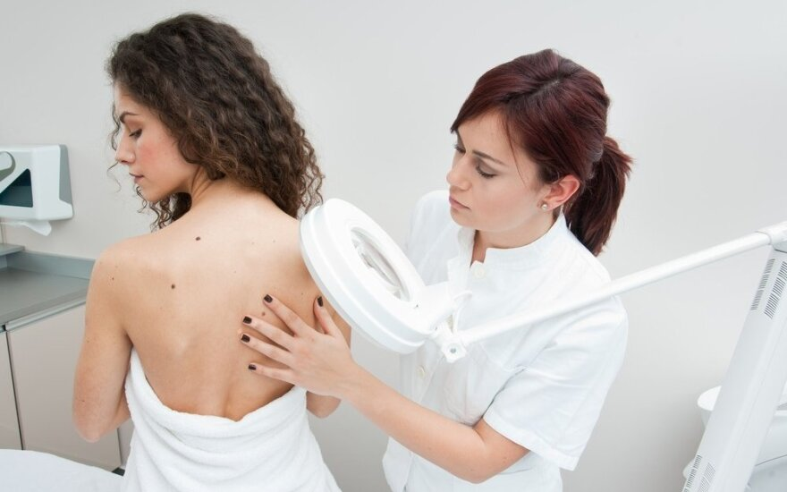 Daugelis žmonių nesugeba pastebėti odos vėžio simptomų
