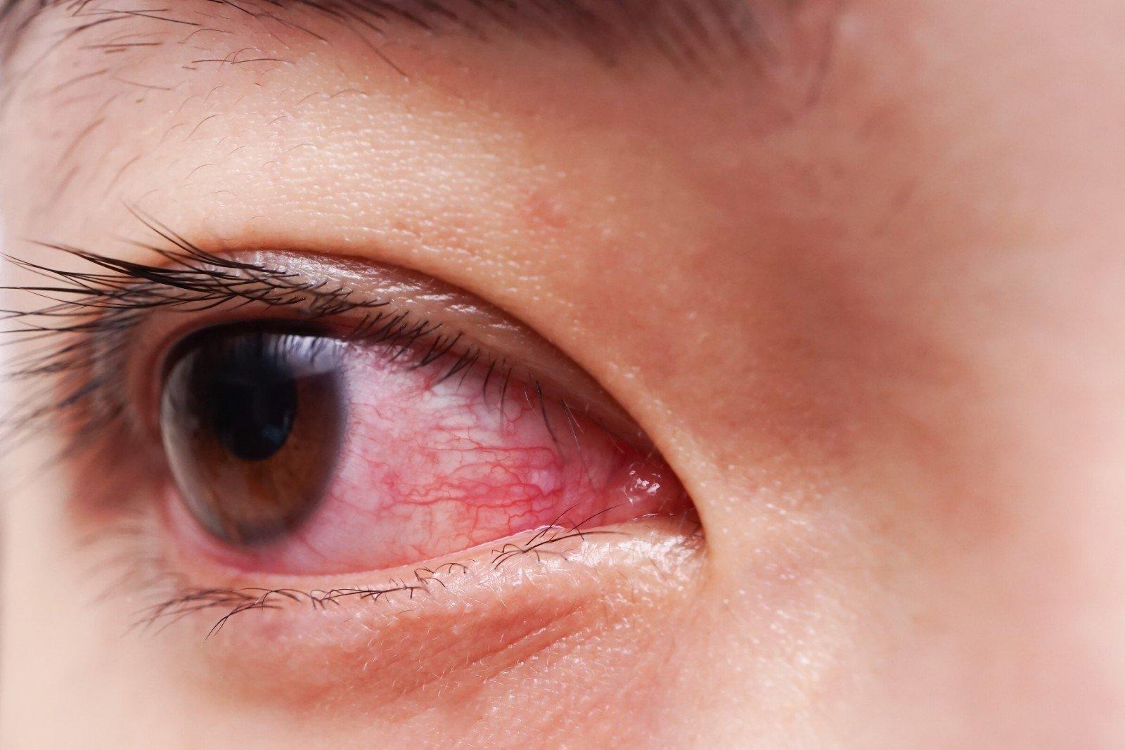 Kaip deginti akių riebalus, Riebalų deginimas: 12 pagrindinių taisyklių, kaip numesti svorio