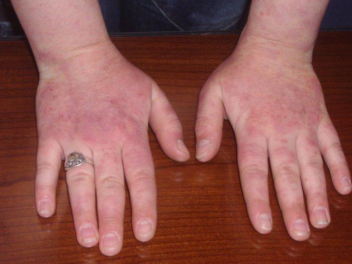 Amorolfinas nagu grybelis poveikis