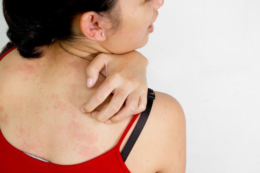 Vaistai odos grybeliui gydyti
