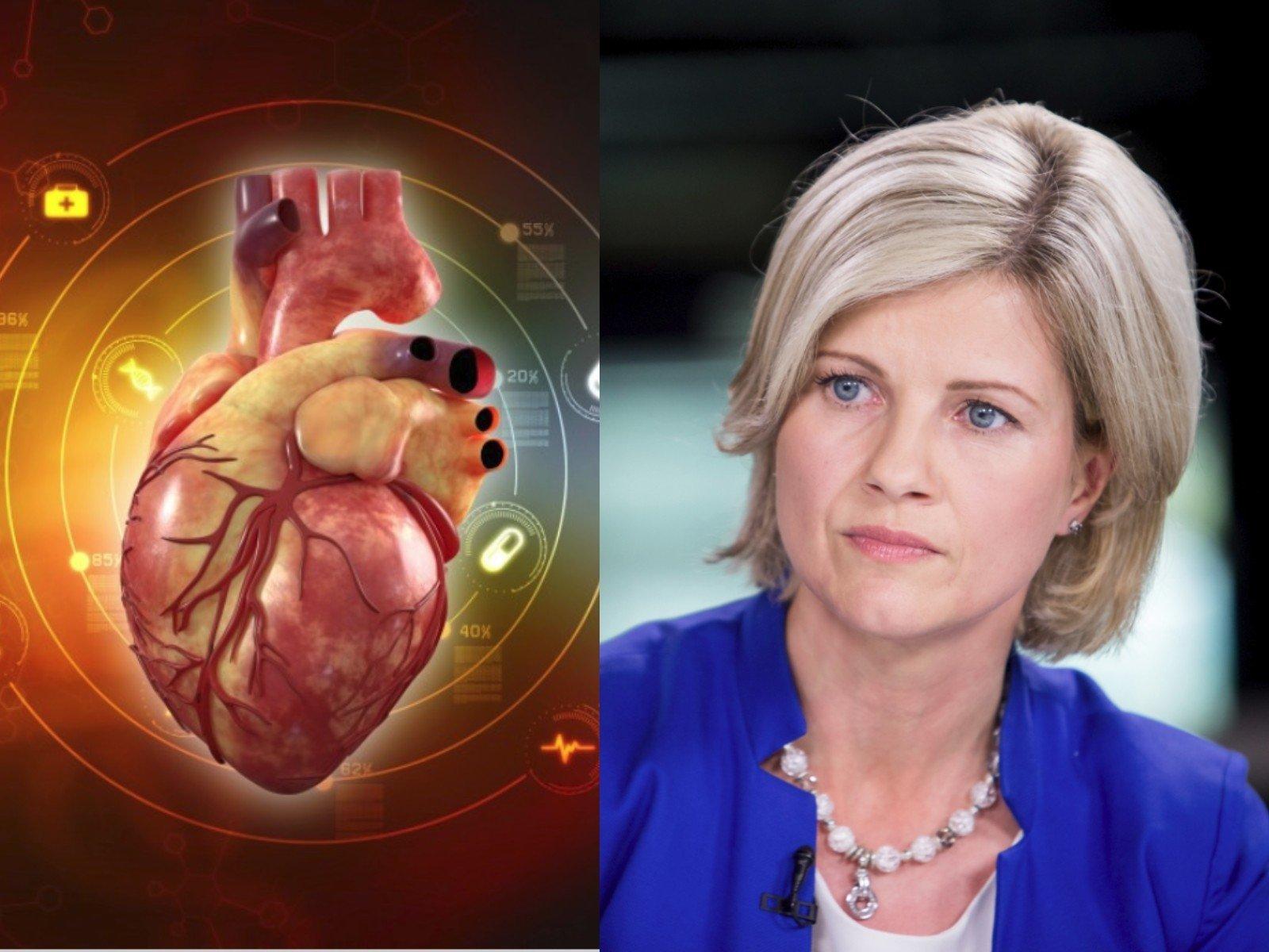 hipertenzijos požymiai ant EKG pupelės ir hipertenzija