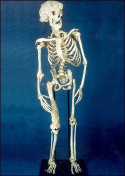 Josepho Merricko skeletas